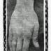 Fingernails and forensics (1900)