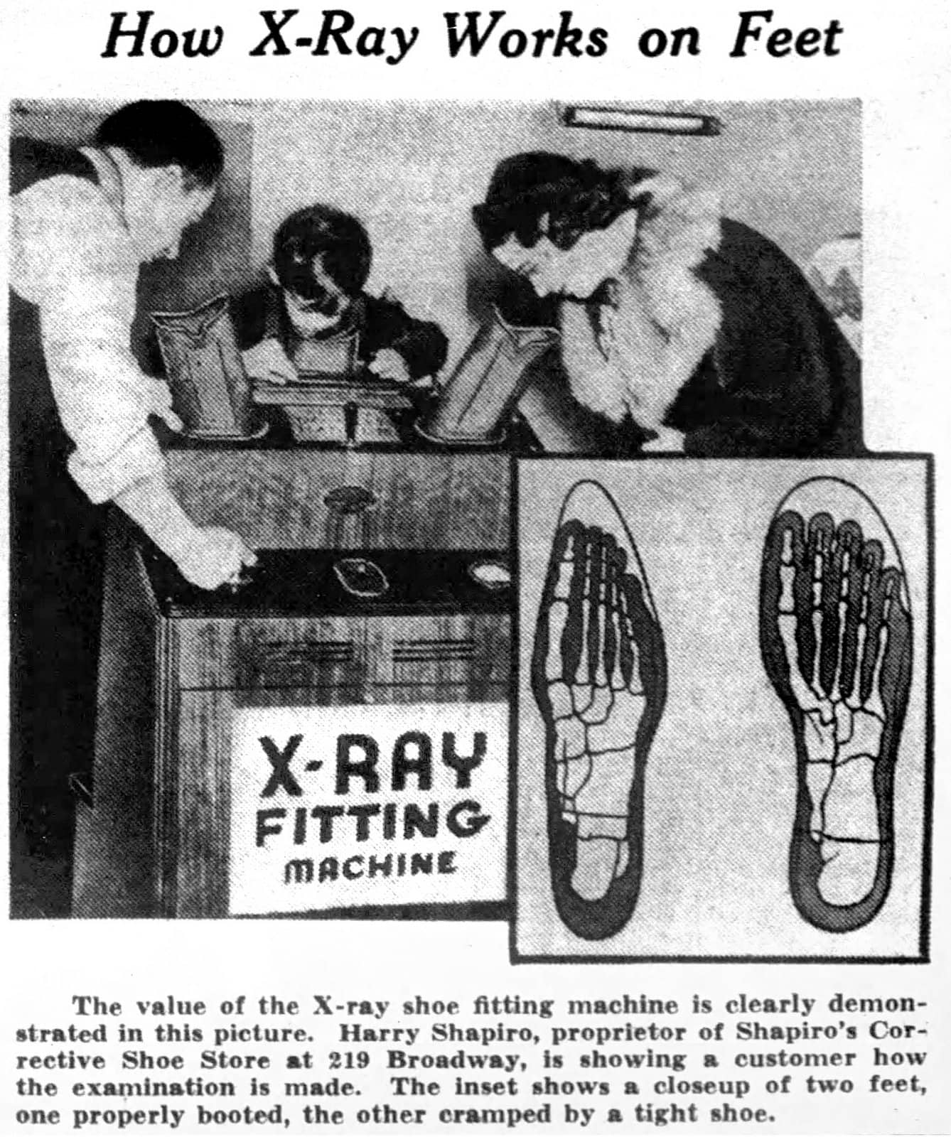 How X-ray works on feet (1940)