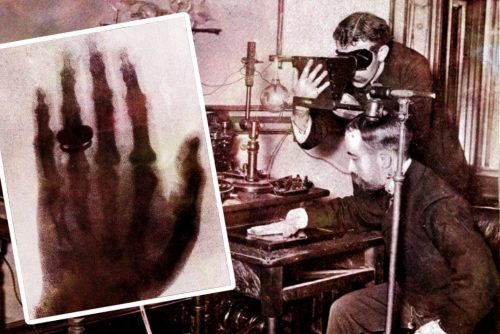 How X-rays were first discovered