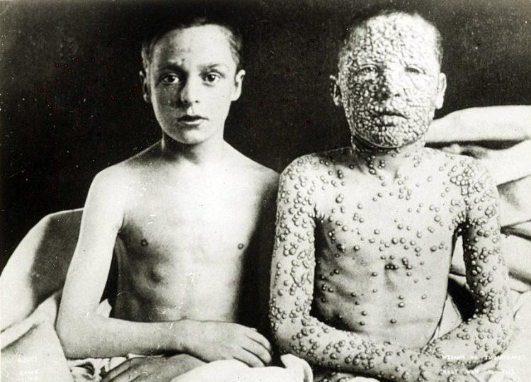 One boy without smallpox, one boy with smallpox - c1910