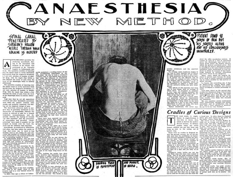 Spinal anesthesia with cocaine - from 1902