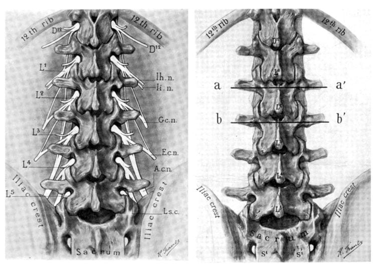 Spinal surgery - vintage medical diagrams