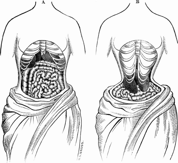 Tight corset lacing - damage to ribs and organs - 1884