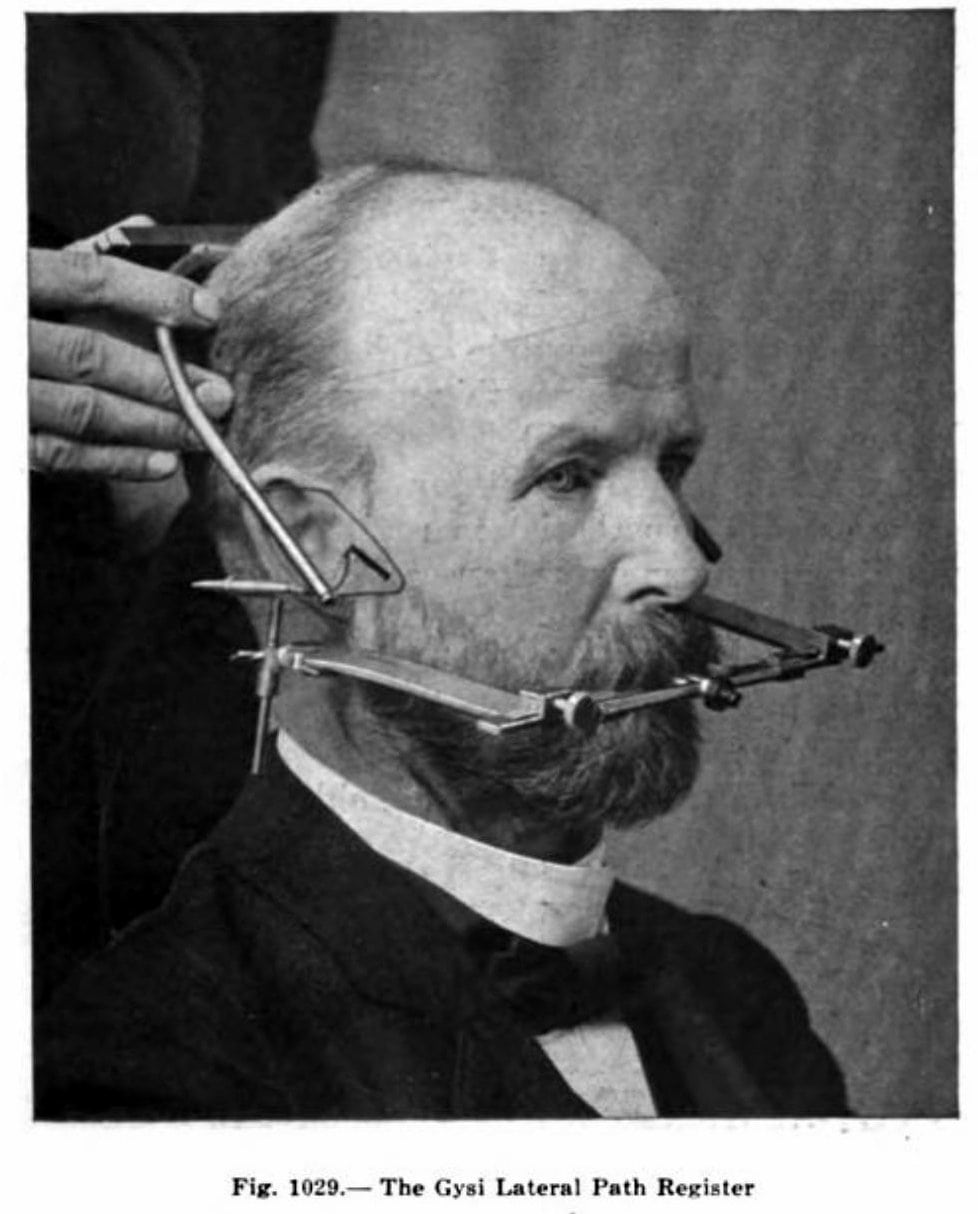 Orthodontics and dentistry from 1923 - Lateral path register device