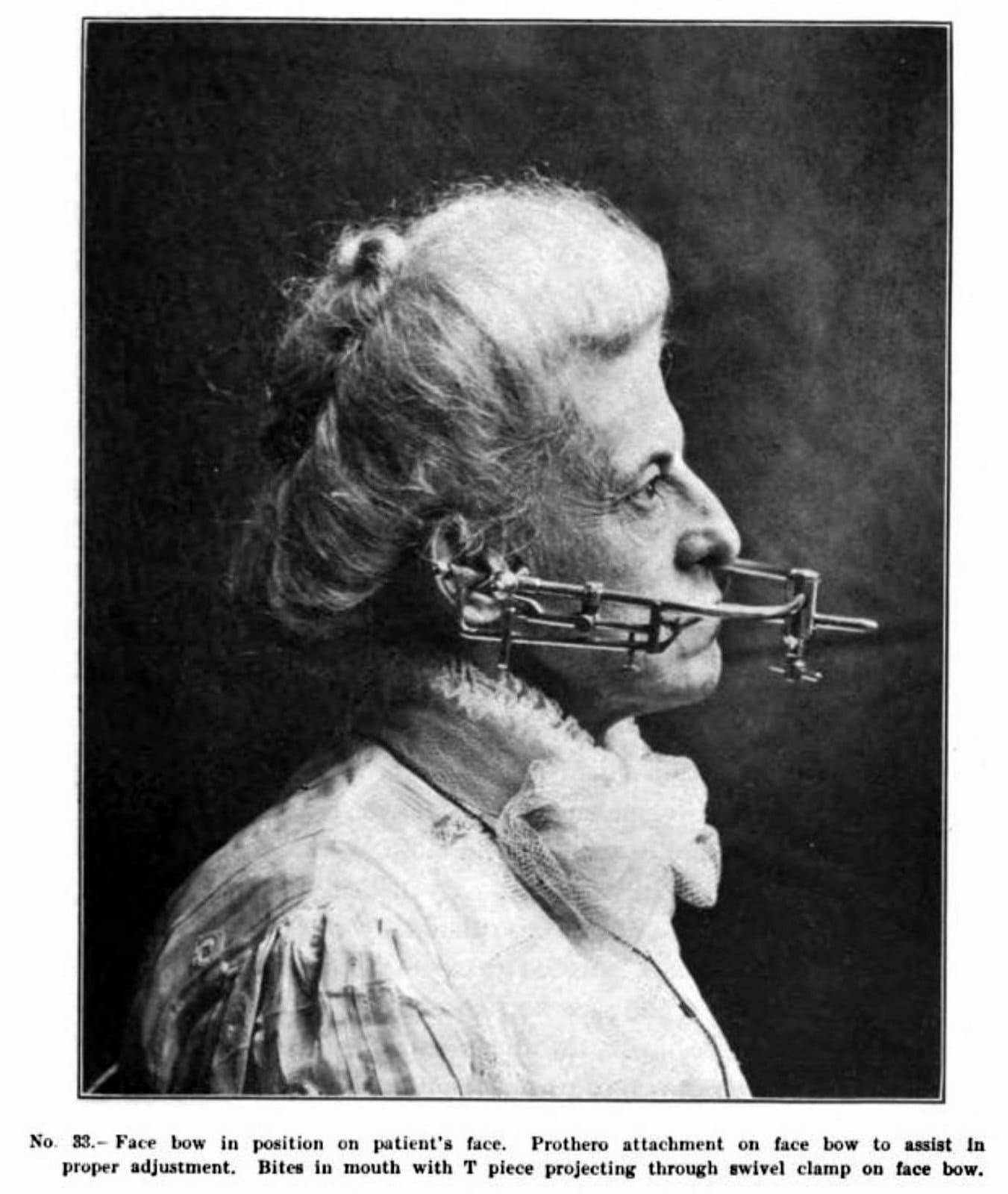 Vintage dentistry from 1923 (2)