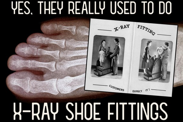 How X-ray shoe fittings used to really be a thing years ago