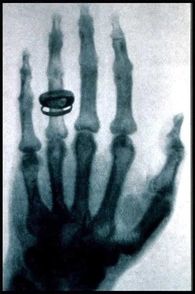 X Ray Wonders 1896 Click Americana